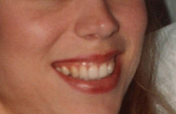 "This is the peson who is supposed to be ""April Rankin"", but isn't. Her gums show when she smiles, and I think she is my step sister Robin Rich."